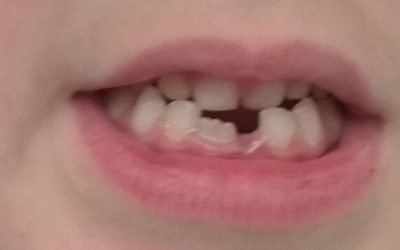 ¡Se empiezan a caer los dientes!